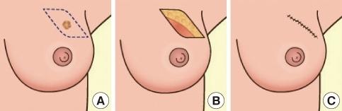 Люмпэктомия